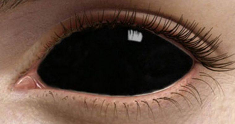Lentille de contact : Des lentilles de contact sur le net